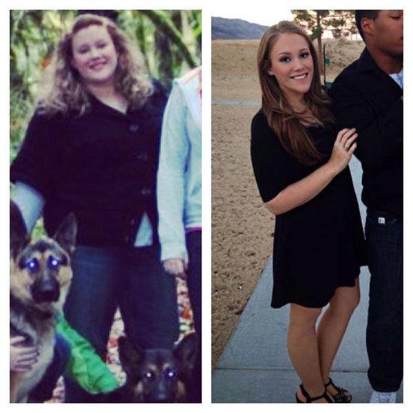 Adelgazar 20 kilos antes y despues de cirugias