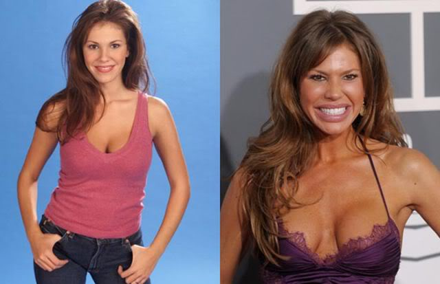 from_hottie_to_ugly_female_celebtrites_who_were_hot_640_10