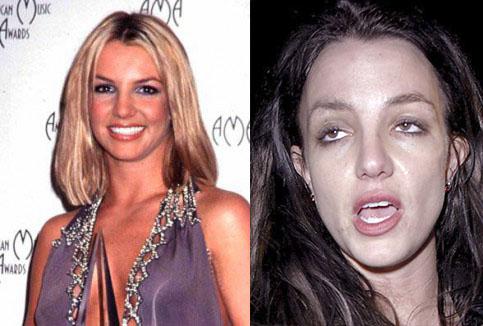 Resultado de imagen para Britney Spears Drogas antes despues