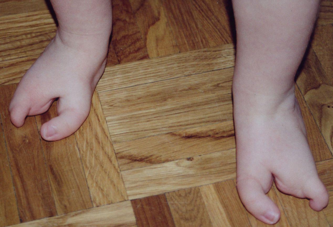 Deux_pieds_1_an