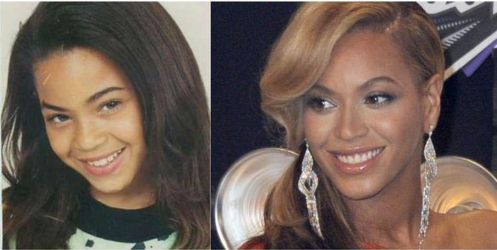 nariz19. Beyoncé.019