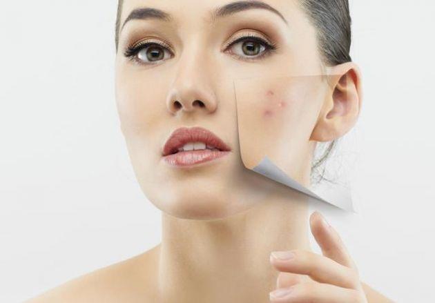 Los-7-tratamientos-de-belleza-mas-desquiciados-que-existen-3