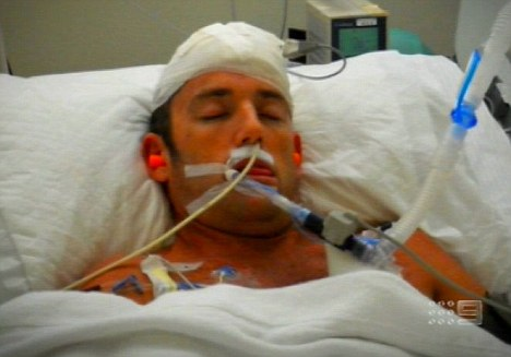 Critically-injured 'Hangover 2' stuntman appears on Aussie TV