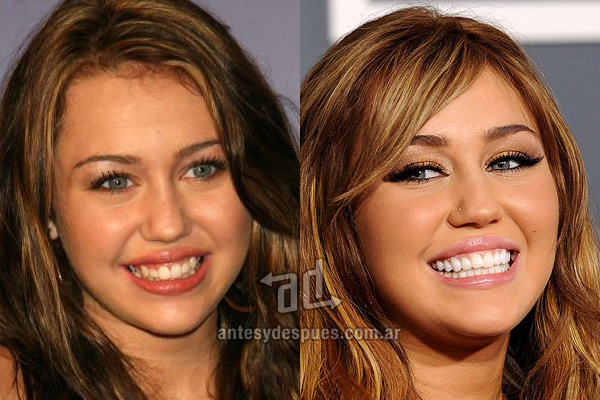 miley-cyrus_dientes_antesydespues.com.ar