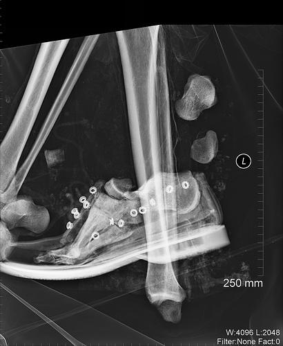 1-radiografia-pie