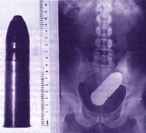 13-radiografia-vala