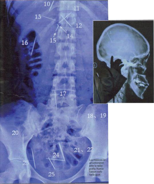 18-radiografia-clavos-2