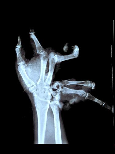 2-radiografia-mano