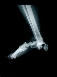 3-radiografia-pie