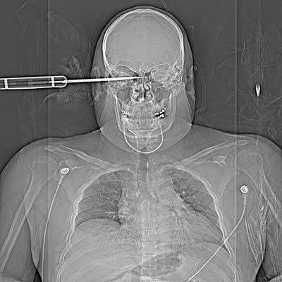 9-radiografia-machete
