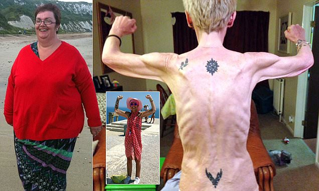 20 stone weightloss anorexia
