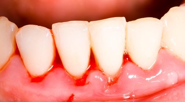 Gingivitis-inflamación-hinchazón-y-sangrado-de-las-encías