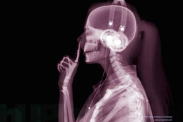 xrays_show_the_human_body_like_youve_never_seen_it_before_640_01