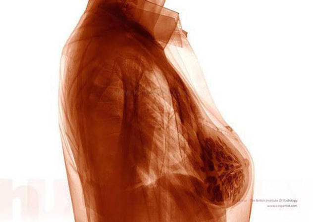 Acciones y cosas en rayos X. Xrays_show_the_human_body_like_youve_never_seen_it_before_640_09
