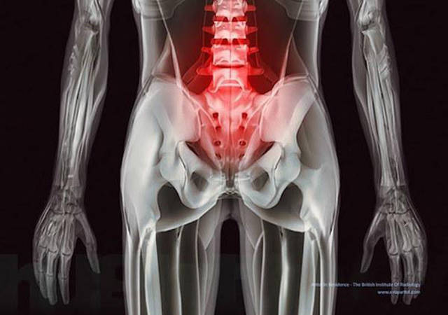 Acciones y cosas en rayos X. Xrays_show_the_human_body_like_youve_never_seen_it_before_640_11