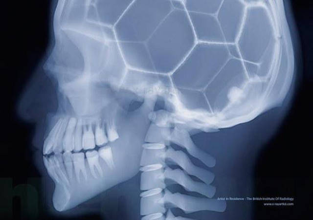 Acciones y cosas en rayos X. Xrays_show_the_human_body_like_youve_never_seen_it_before_640_12