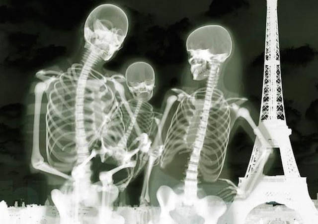 Acciones y cosas en rayos X. Xrays_show_the_human_body_like_youve_never_seen_it_before_640_14