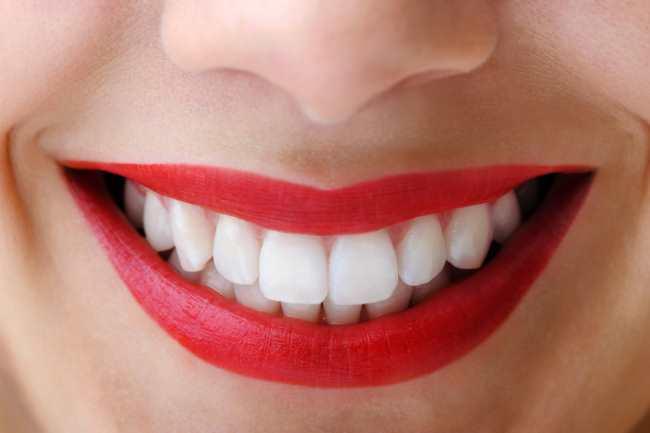 Remedios-caseros-para-blanquear-los-dientes