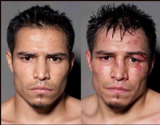 boxeadores-antes-y-despues-de-un-combate-1