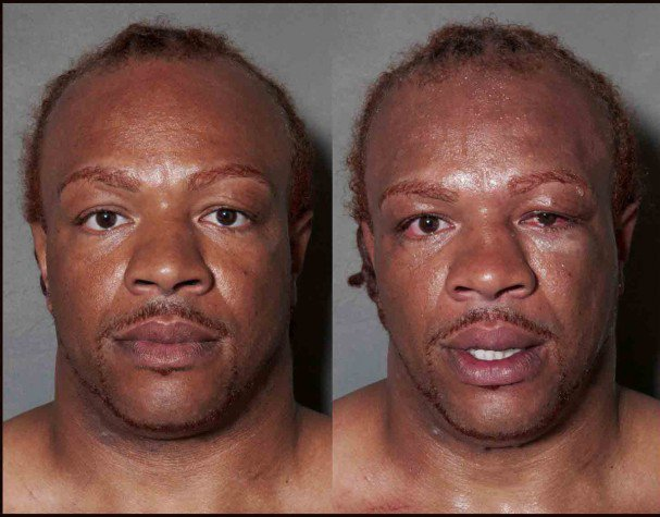 boxeadores-antes-y-despues-de-un-combate-10