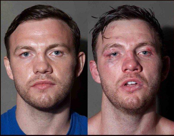 boxeadores-antes-y-despues-de-un-combate-2