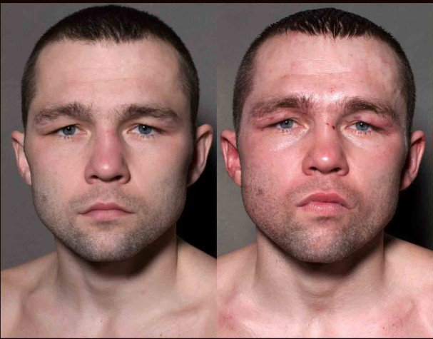 boxeadores-antes-y-despues-de-un-combate-3
