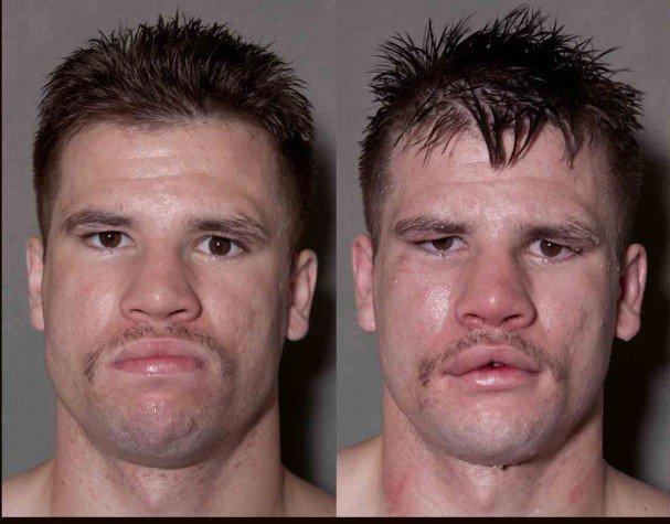 boxeadores-antes-y-despues-de-un-combate-6
