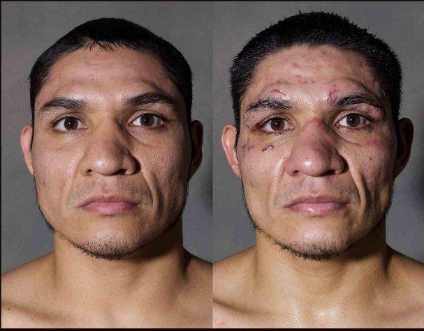 boxeadores-antes-y-despues-de-un-combate-8