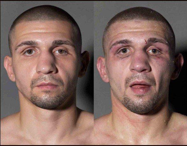 boxeadores-antes-y-despues-de-un-combate-9