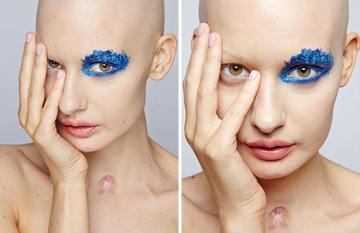 modelo-embarazada-cancer-huesos-elizaveta-bulokhova-1