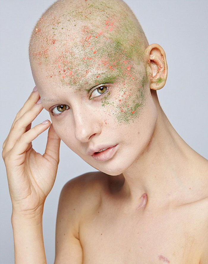 modelo-embarazada-cancer-huesos-elizaveta-bulokhova-18