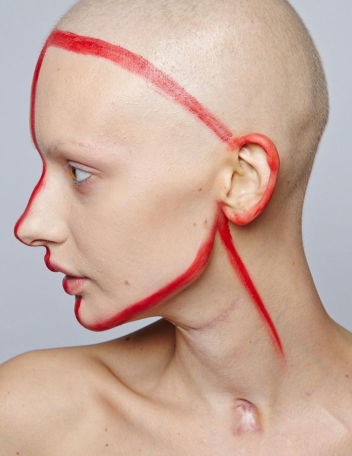 modelo-embarazada-cancer-huesos-elizaveta-bulokhova-5