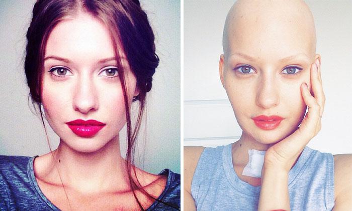 modelo-embarazada-cancer-huesos-elizaveta-bulokhova-8