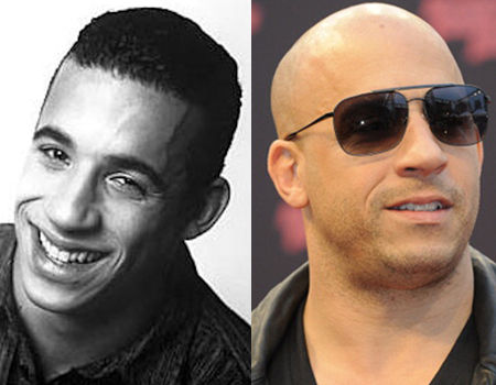 vin_diesel_before_after_bald_no_hair_thinning_actor_18gmpdp-18gmph4