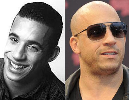 vin_diesel_before_after_bald_no_hair_thinning_actor_18gmpdp-18gmph4