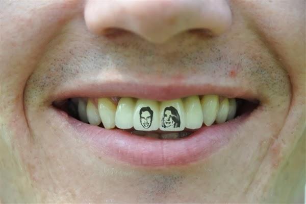 110427-royal-teeth-740a-02.photoblog600