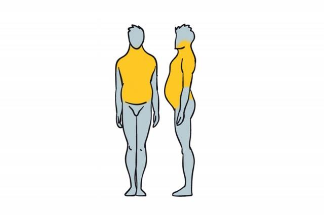 Tipos-de-obesidad-y-como-eliminarla-1
