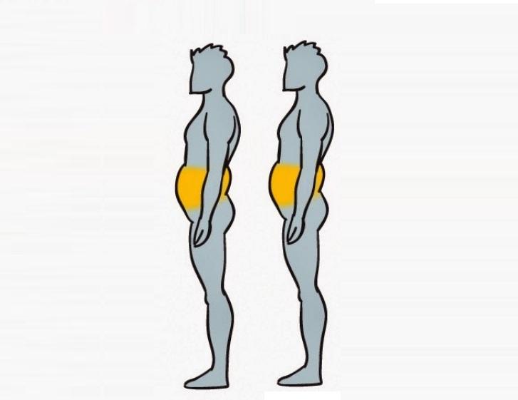 Tipos-de-obesidad-y-como-eliminarla-6