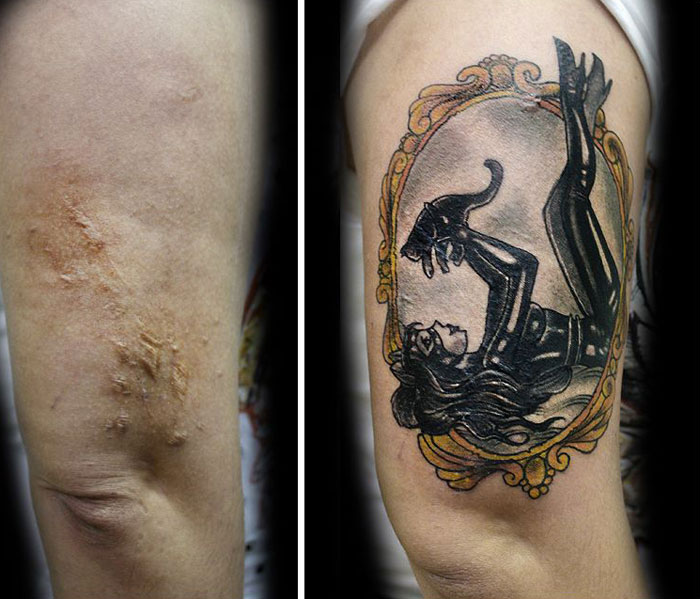 tatuaje-sobre-cicatrices-3