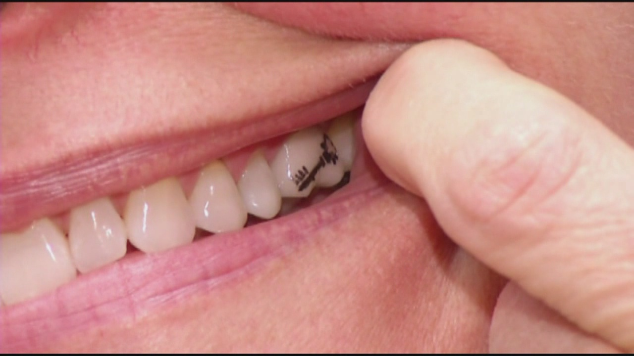 tooth+tattoo_3