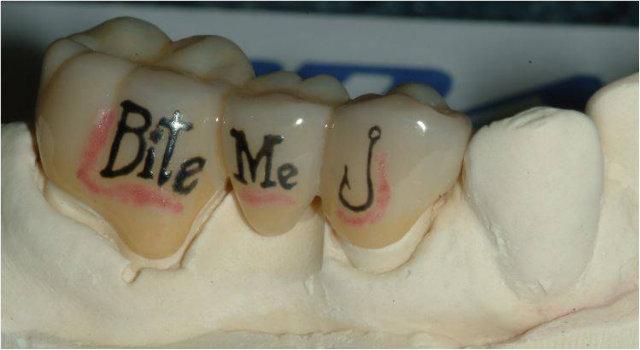tooth-tattoo-bridge