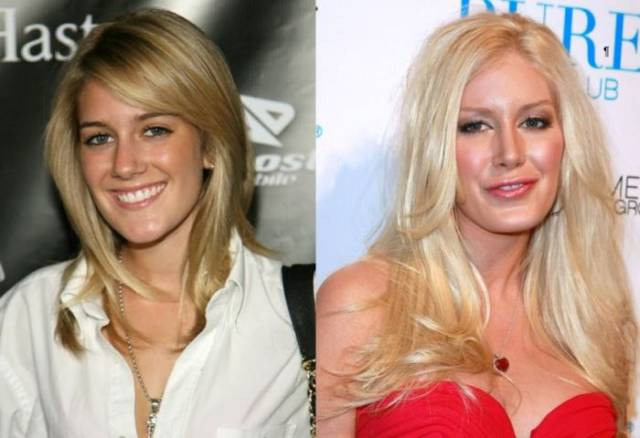 celebrity_transformations_that_were_totally_shocking_and_unexpected_640_07