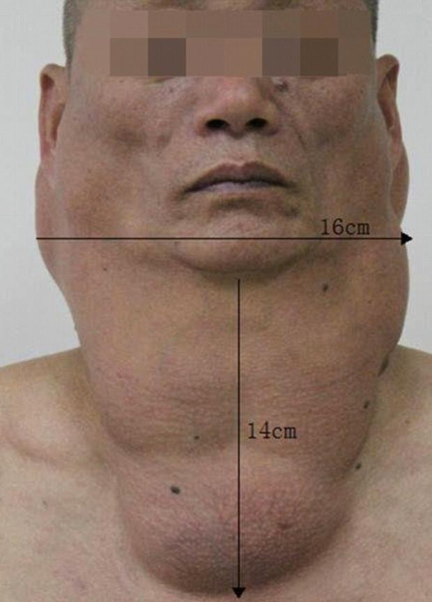 depositos-grasa-garganta-2