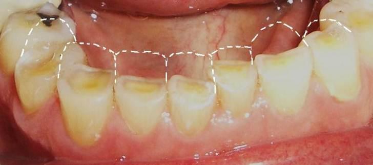 tooth-enamel-erosion2
