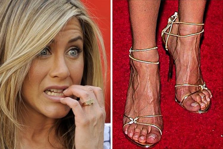 9-celebridades-que-tienen-unos-pies-horribles_4