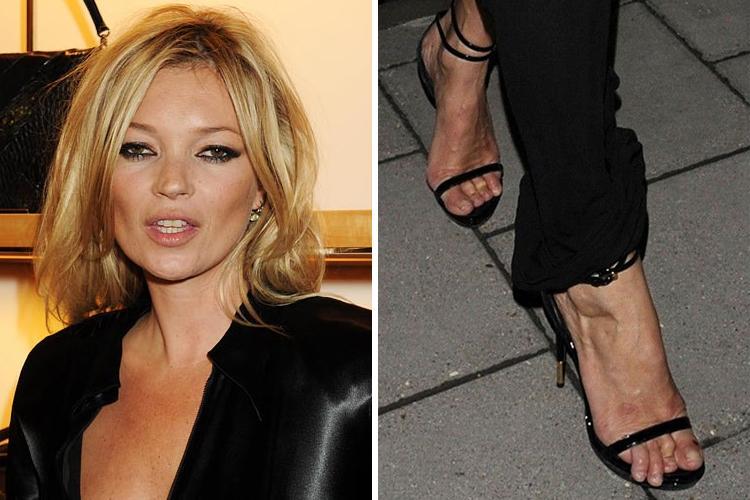 9-celebridades-que-tienen-unos-pies-horribles_9