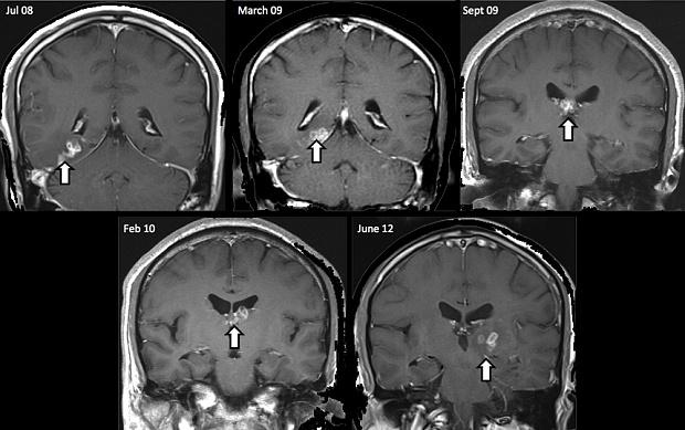 brain-scans-showin_3492380b