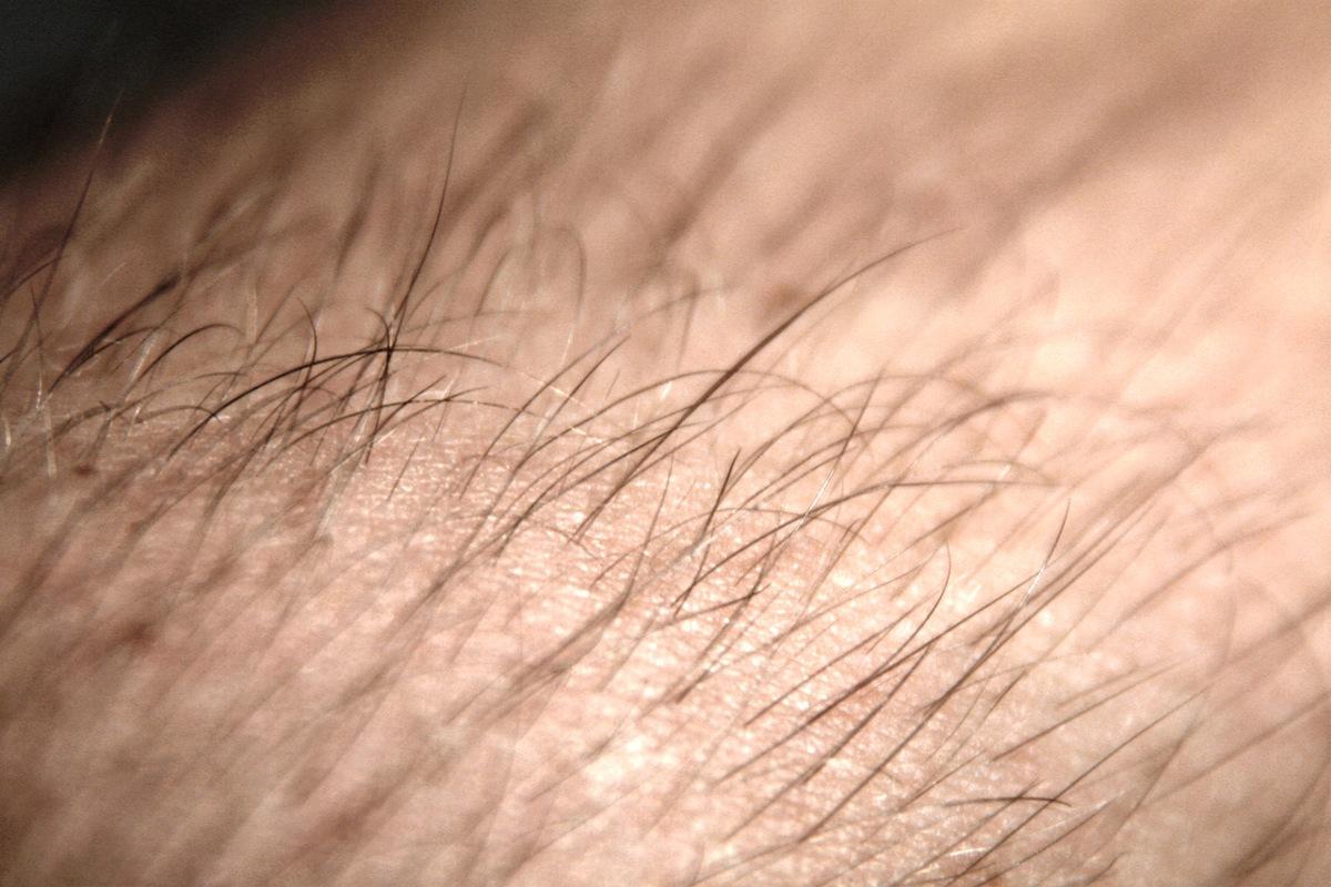 es normal tener pelos en el pene