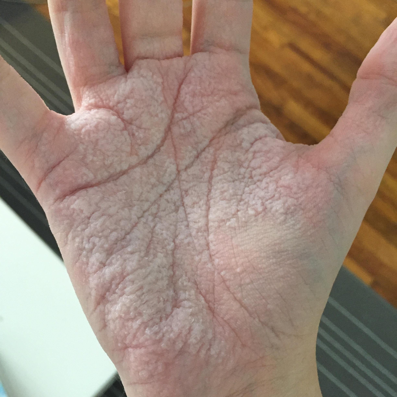 Penis dry skin on