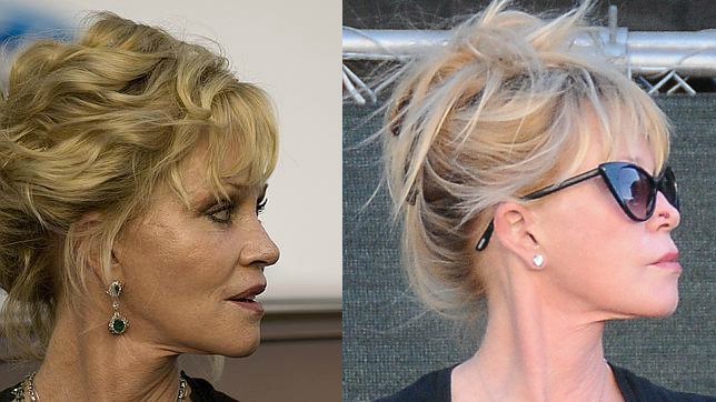 melanie-griffith-antes-y-despues-cirugias